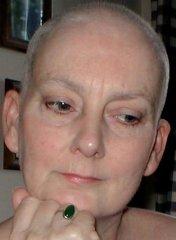 Áttétes hasnyálmirigy daganat